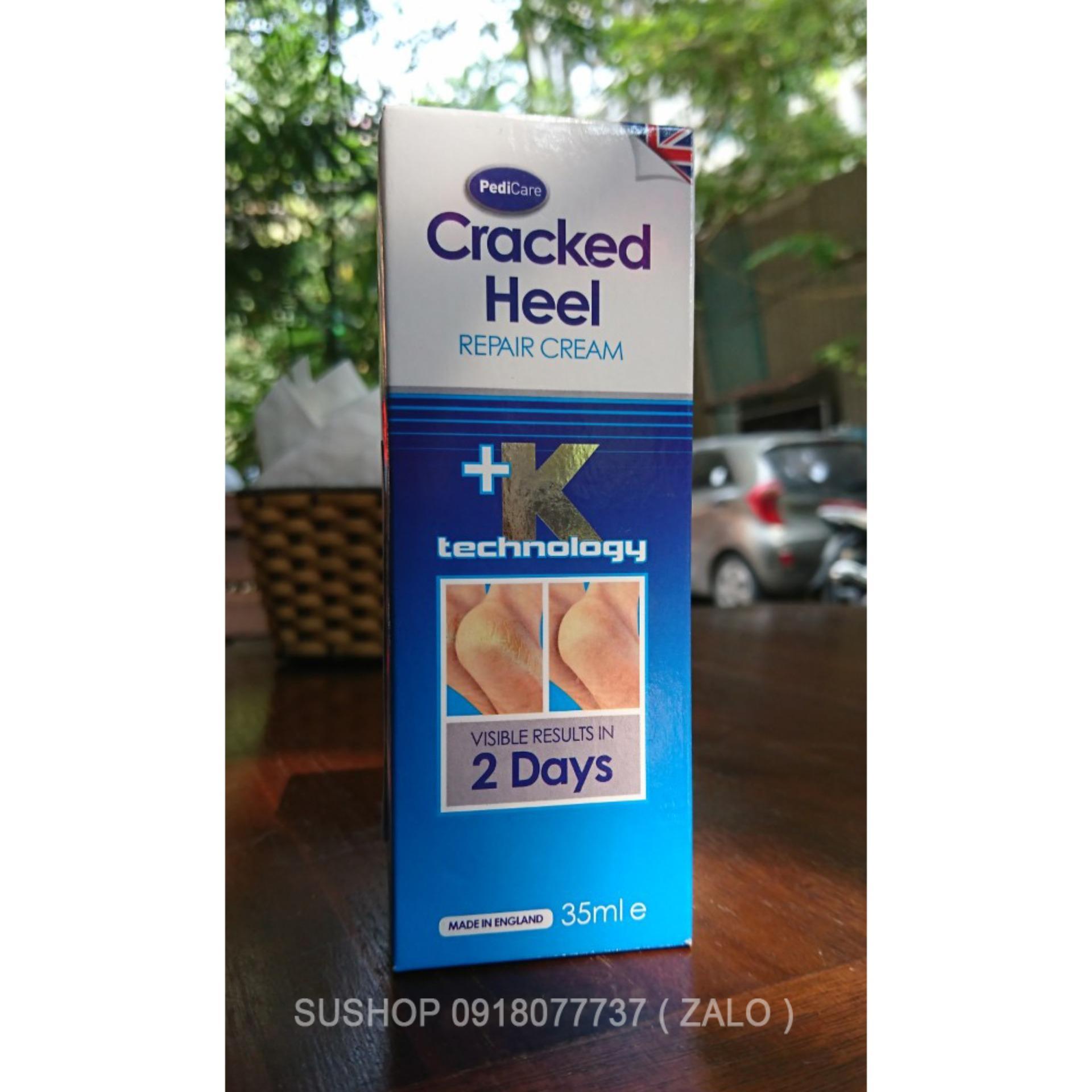 Kem trị nứt gót chân - Cracked Heel cao cấp