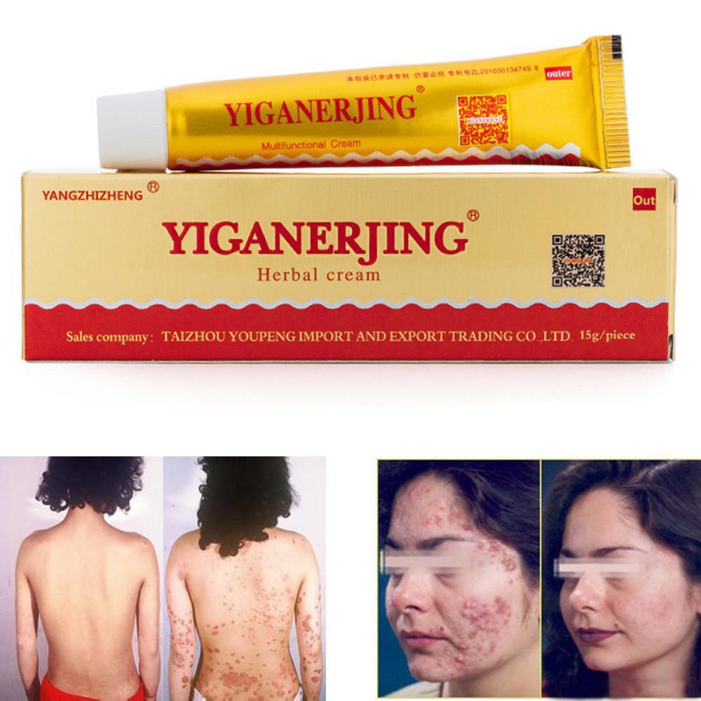 YiGanErJing Thảo Dược Thiên Nhiên Thảo Dược Kem cho Bệnh Vẩy Nến Chàm Mụn Ngứa 15g