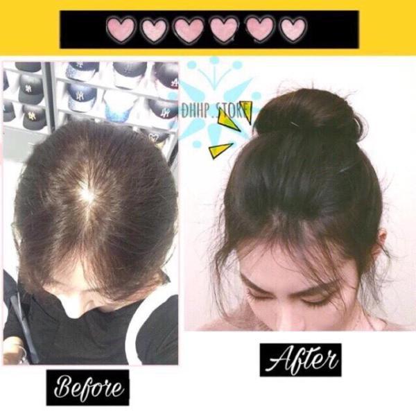 [Màu đen] TÓC MÁI PHỒNG kẹp làm phồng tóc mái