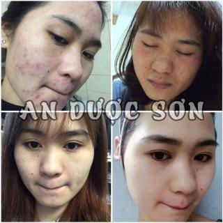 Bộ serum giảm mụn thâm sẹo rỗ An Dược Sơn combo 30ML+50ML thumbnail