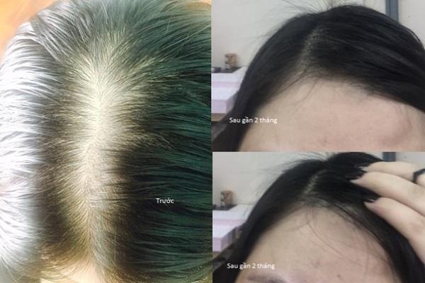 MAXXHAIR Ngăn rụng tóc, hói đầu, trị tóc bạc (Không có mã cào) chính hãng