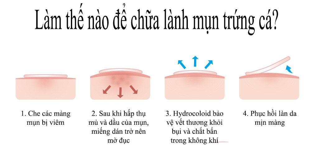 BREYLEE Miếng Dán Tri Mụn Đầu Đen Tri Thâm Mụn Trứng Cá Lột Mụn Đậu Đen Làm Mờ Vết Thâm Do Mụn (Dùng Cho Buổi Tối) FACIAL MASK 22 PATCHES NIGHT USE ACNE PIMPLE PATCH 7
