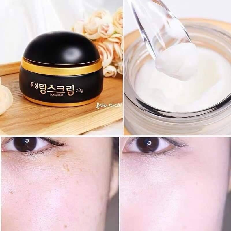 Nước Hoa Hồng Trị Nám Dongsung Rannce Skin 130ml   Lazada.vn